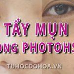 Tẩy mụn bằng photoshop – Cách tẩy mụn trên ảnh bằng Ps