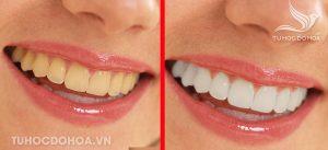 Tổng quan về làm răng trong photoshop